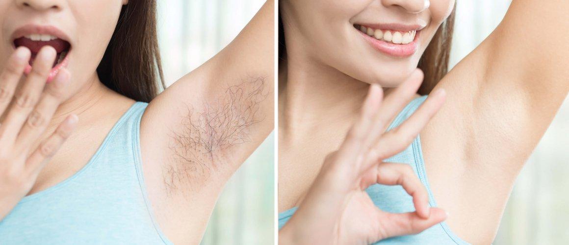 5 powodów, dla których warto się zdecydować na depilację laserową