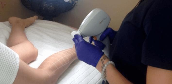 Depilacja laserowa nóg – ile zabiegów należy wykonać?